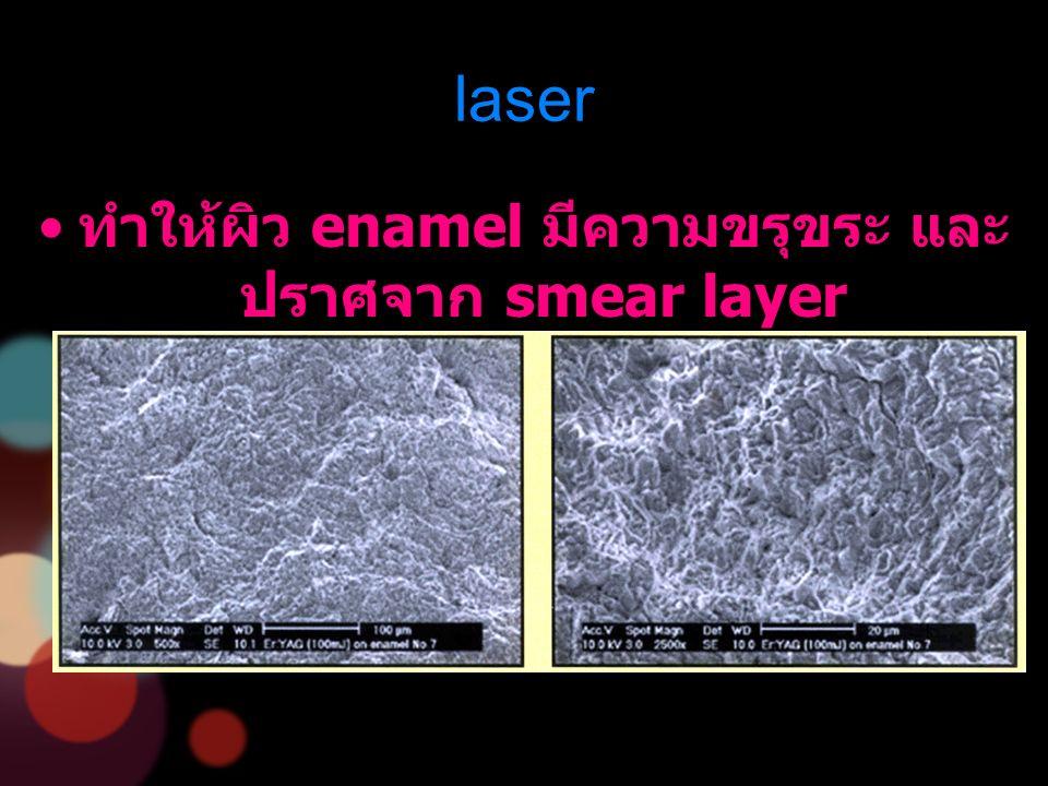 laser ทำให้ผิว enamel มีความขรุขระ และ ปราศจาก smear layer