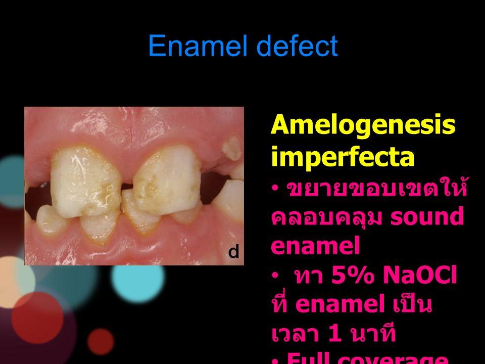 Enamel defect Amelogenesis imperfecta ขยายขอบเขตให้ คลอบคลุม sound enamel ทา 5% NaOCl ที่ enamel เป็น เวลา 1 นาที Full coverage restoration