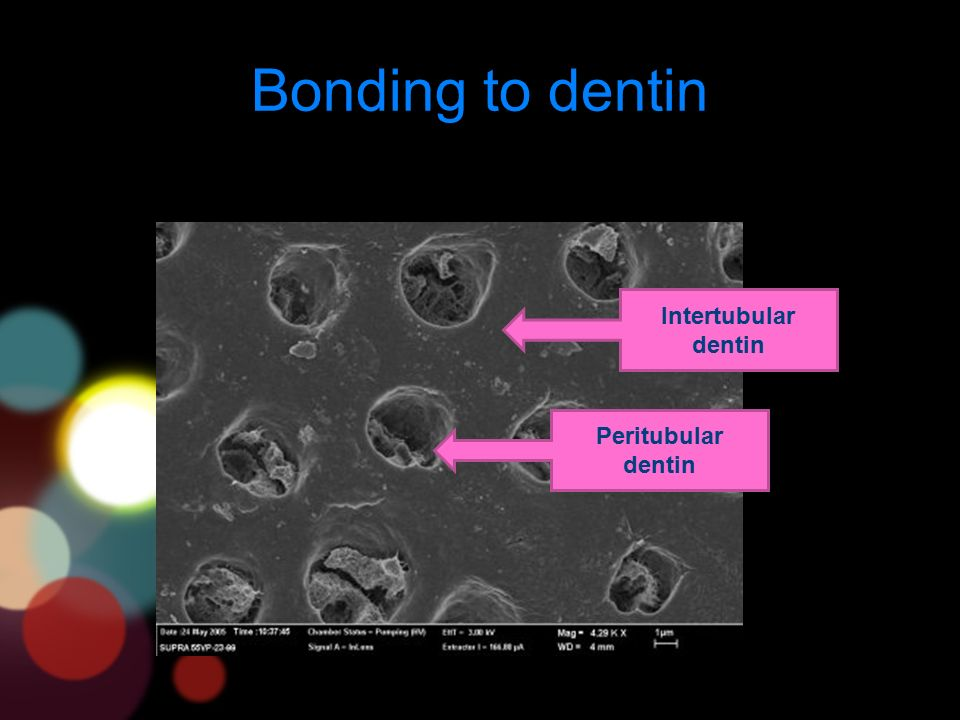 Bonding to dentin Peritubular dentin Intertubular dentin