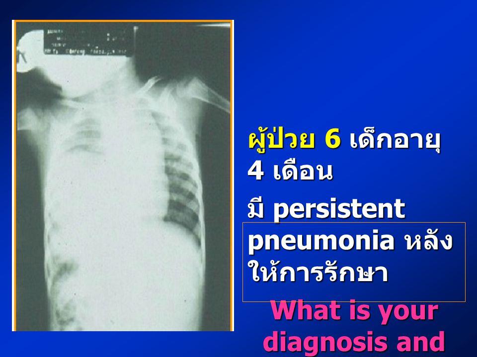 ผู้ป่วย 6 เด็กอายุ 4 เดือน มี persistent pneumonia หลัง ให้การรักษา What is your diagnosis and plan of management ?
