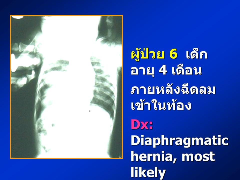 ผู้ป่วย 6 เด็ก อายุ 4 เดือน ภายหลังฉีดลม เข้าในท้อง Dx: Diaphragmatic hernia, most likely Morgagni hernia
