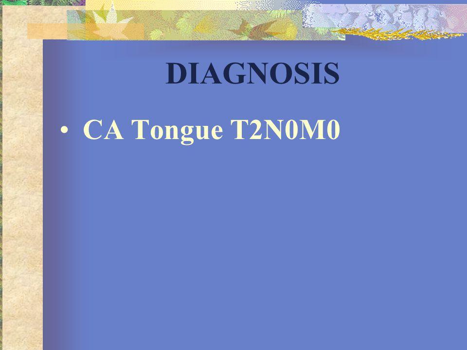 •CA Tongue T2N0M0