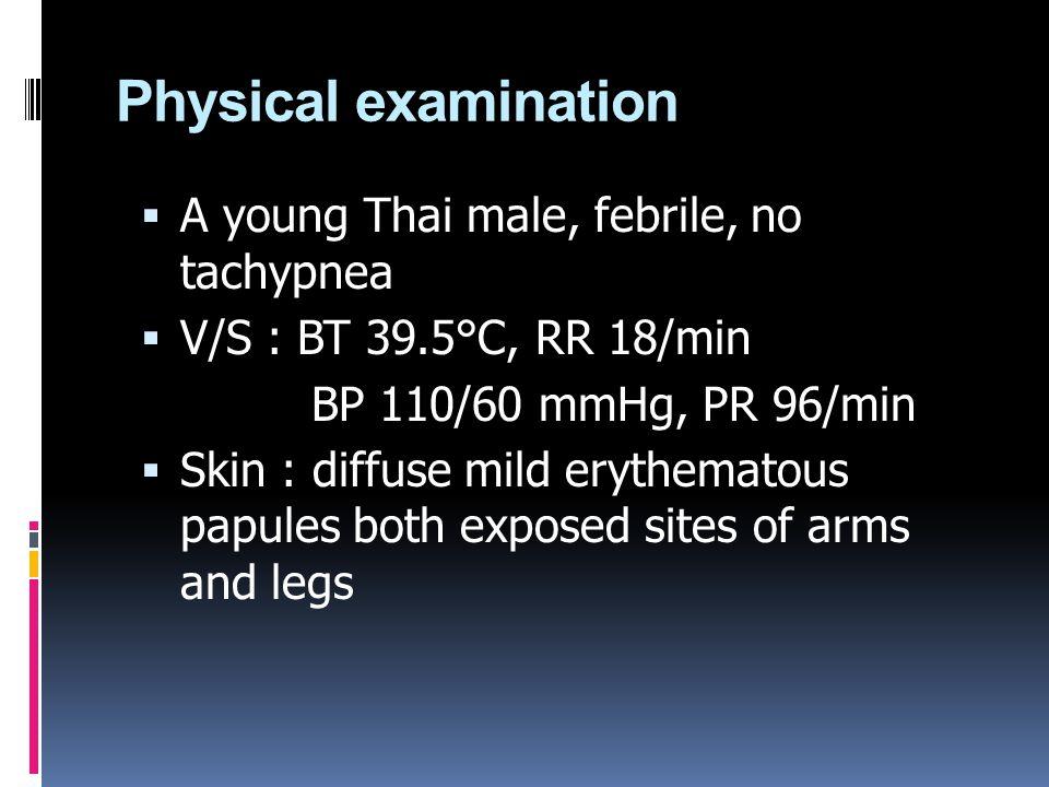 Physical examination  A young Thai male, febrile, no tachypnea  V/S : BT 39.5°C, RR 18/min BP 110/60 mmHg, PR 96/min  Skin : diffuse mild erythemat