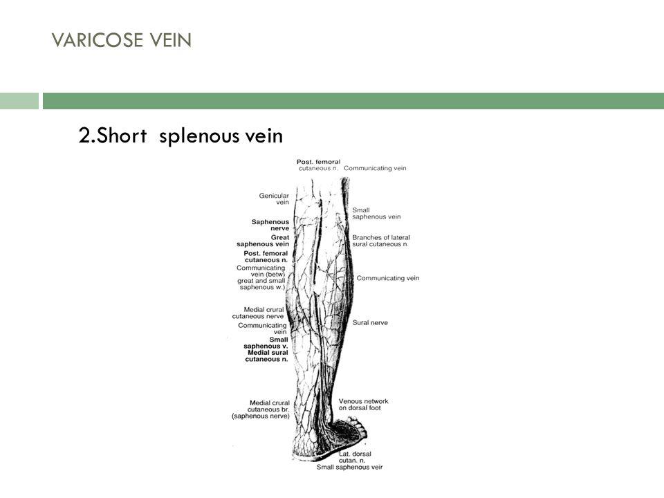 2.Short splenous vein VARICOSE VEIN