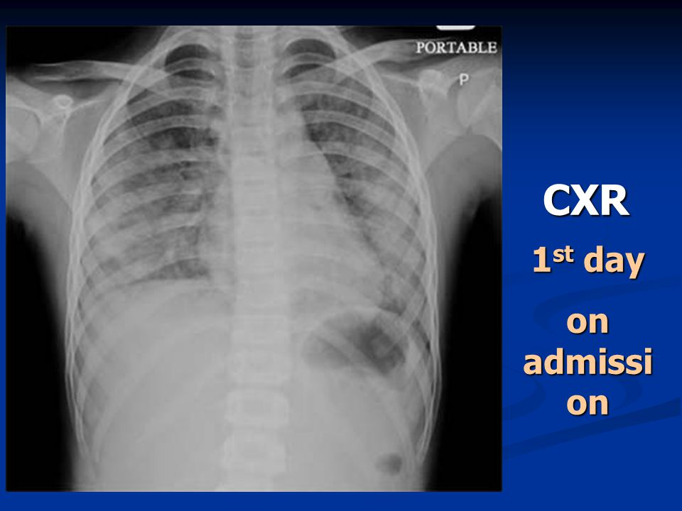 CXR 1 st day on admissi on