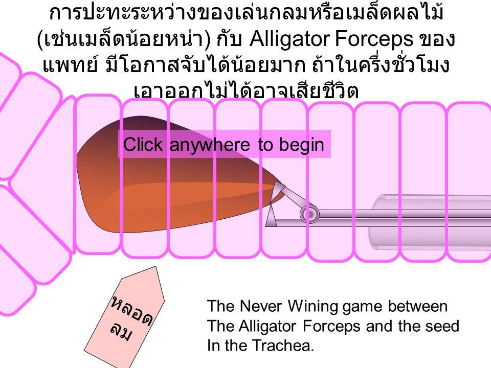 การปะทะระหว่างของเล่นกลมหรือเมล็ดผลไม้ ( เช่นเมล็ดน้อยหน่า ) กับ Alligator Forceps ของ แพทย์ มีโอกาสจับได้น้อยมาก ถ้าในครึ่งชั่วโมง เอาออกไม่ได้อาจเสียชีวิต หลอด ลม Click anywhere to begin The Never Wining game between The Alligator Forceps and the seed In the Trachea.