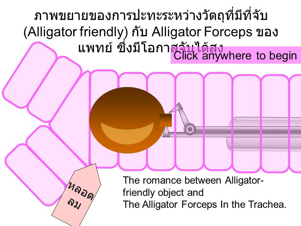 ภาพขยายของการปะทะระหว่างวัตถุที่มีที่จับ (Alligator friendly) กับ Alligator Forceps ของ แพทย์ ซึ่งมีโอกาสจับได้สูง หลอด ลม Click anywhere to begin The romance between Alligator- friendly object and The Alligator Forceps In the Trachea.