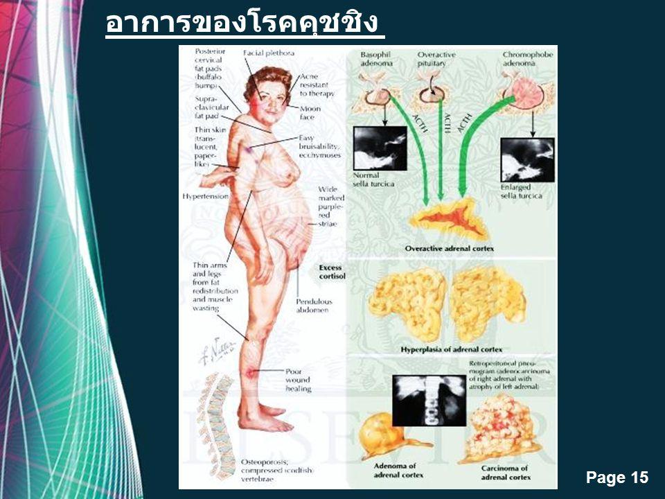 Free Powerpoint Templates Page 14 เกิดจากการมีฮอร์โมนสเตอรอยด์จากต่อมหมวกไตใน เลือดสูงกว่าปกติ ส่วนใหญ่เป็นผลมาจากการใช้ ยาสเตอรอยด์ นาน ๆ โรคคุชชิง (
