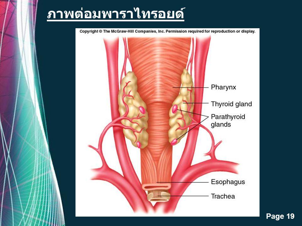 Free Powerpoint Templates Page 18 Hyperparathyroidism เป็นความผิดปกติเนื่องจาก ฮอร์โมนพาราธอร์โมนจากต่อมพาราไทรอยด์มากเกินไป โรคHyperparathyroidism สา