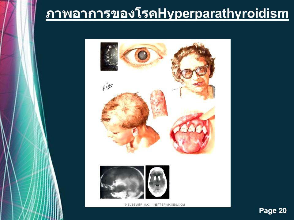 Free Powerpoint Templates Page 19 ภาพต่อมพาราไทรอยด์