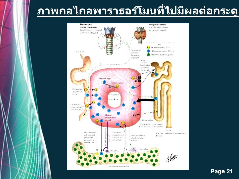 Free Powerpoint Templates Page 20 ภาพอาการของโรค Hyperparathyroidism