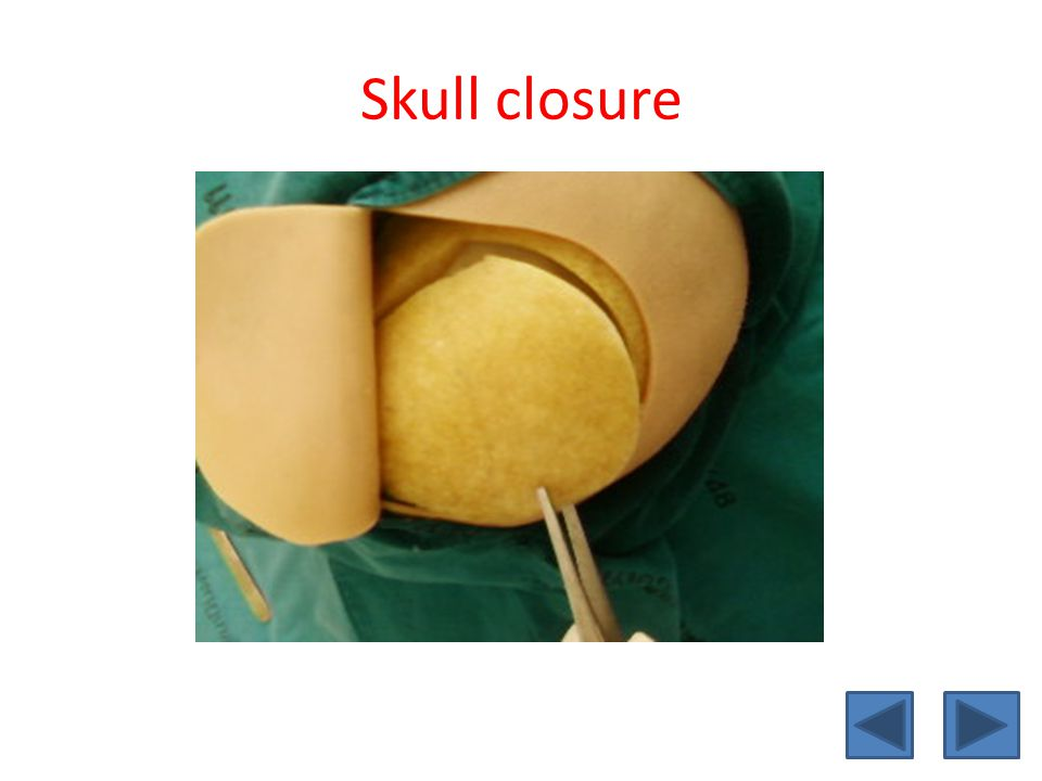 Skull closure