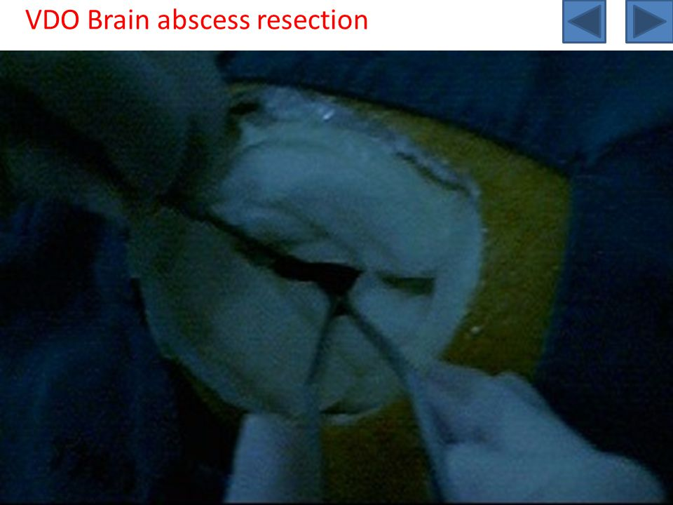 VDO Brain abscess resection