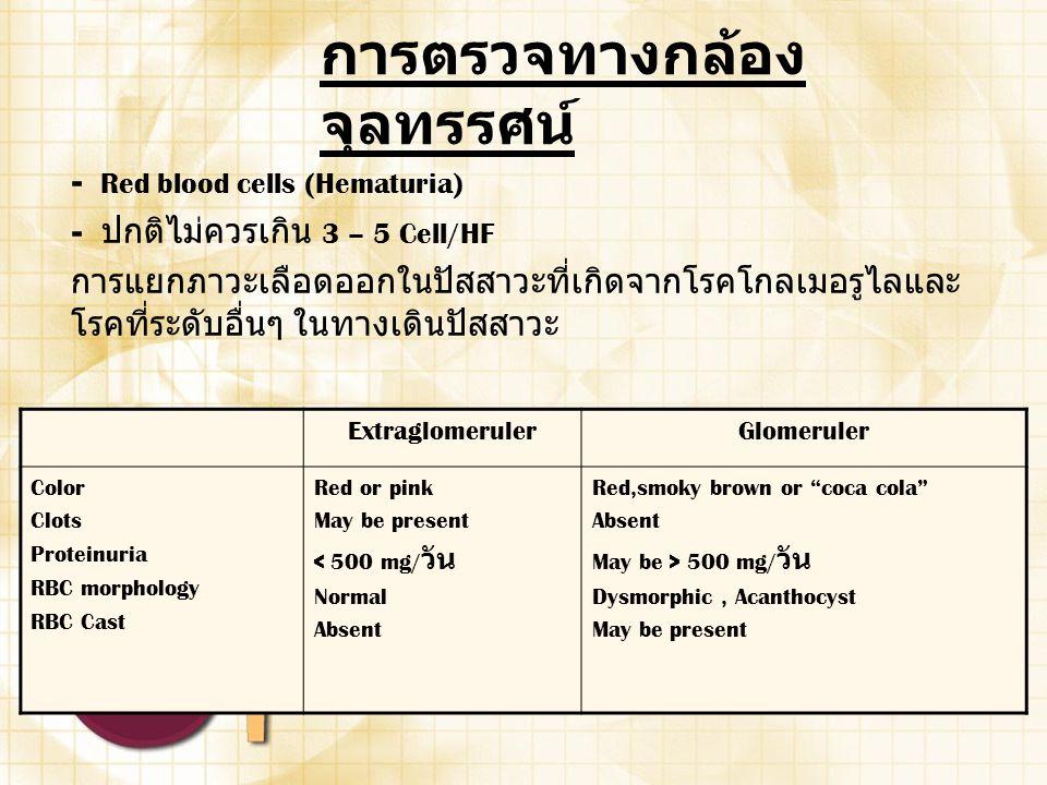 การตรวจทางกล้อง จุลทรรศน์ - Red blood cells (Hematuria) - ปกติไม่ควรเกิน 3 – 5 Cell/HF การแยกภาวะเลือดออกในปัสสาวะที่เกิดจากโรคโกลเมอรูไลและ โรคที่ระด