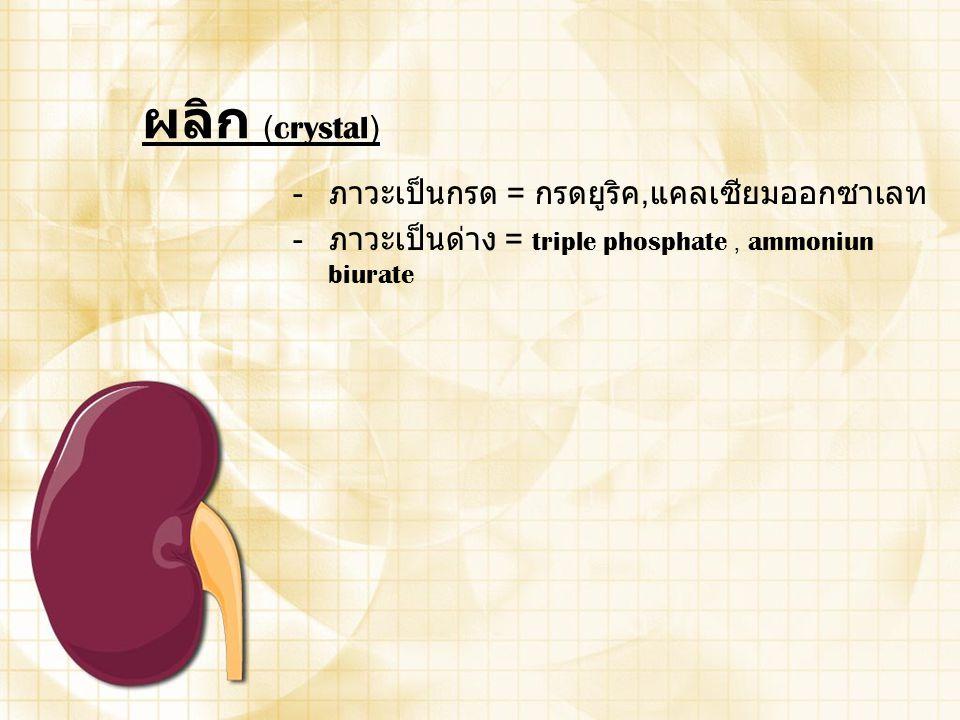 ผลิก (crystal) - ภาวะเป็นกรด = กรดยูริค, แคลเซียมออกซาเลท - ภาวะเป็นด่าง = triple phosphate, ammoniun biurate