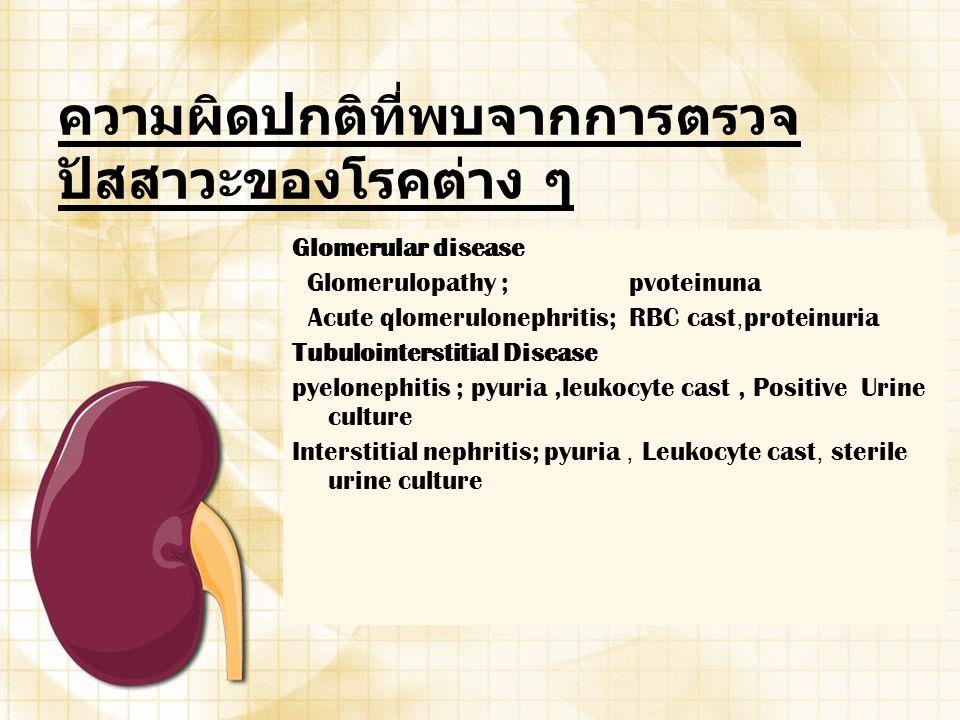 ความผิดปกติที่พบจากการตรวจ ปัสสาวะของโรคต่าง ๆ Glomerular disease Glomerulopathy ; pvoteinuna Acute qlomerulonephritis; RBC cast,proteinuria Tubuloint