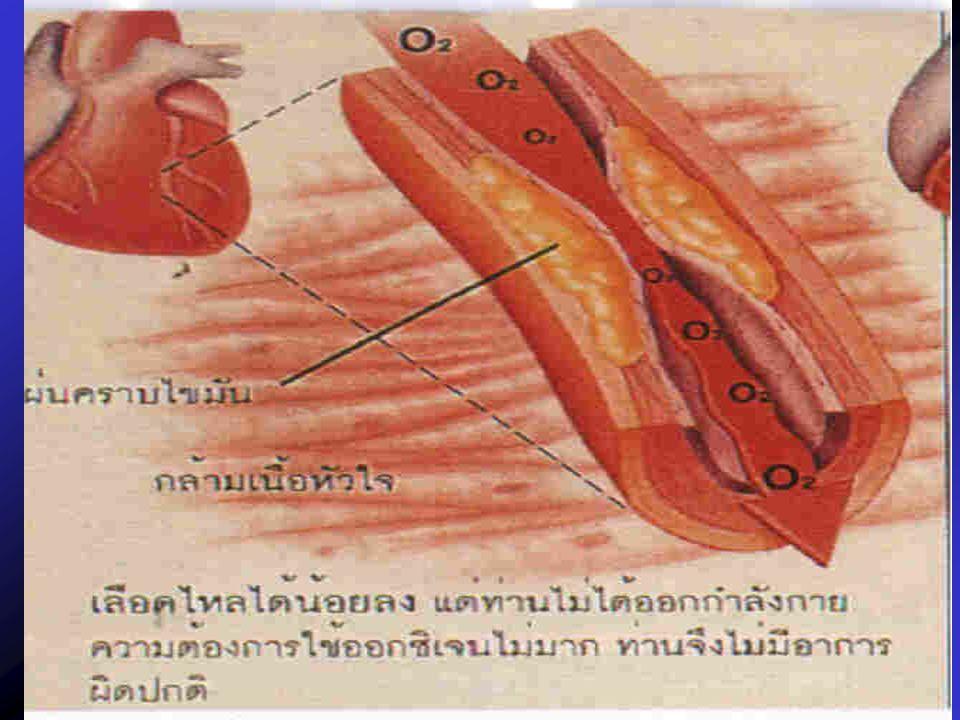 ทางเดินอาหาร ทางเดินโลหิต เลซิติน ผนังลำไส้ ผนังหลอดเลือด คอเลสเตอรอล