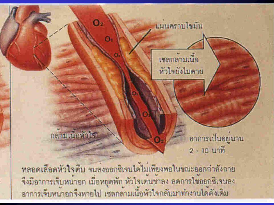 Acethylcholine ลดลง โคลีนในเซลประสาทลดลง Acethylcholine เพิ่มขึ้นให้ เลซิติน โรคระบบประสาท อัลไซเมอร์ ประสาทกระตุก กล้ามเนื้อกระตุก เคลื่อนไหวเชื่องช้า
