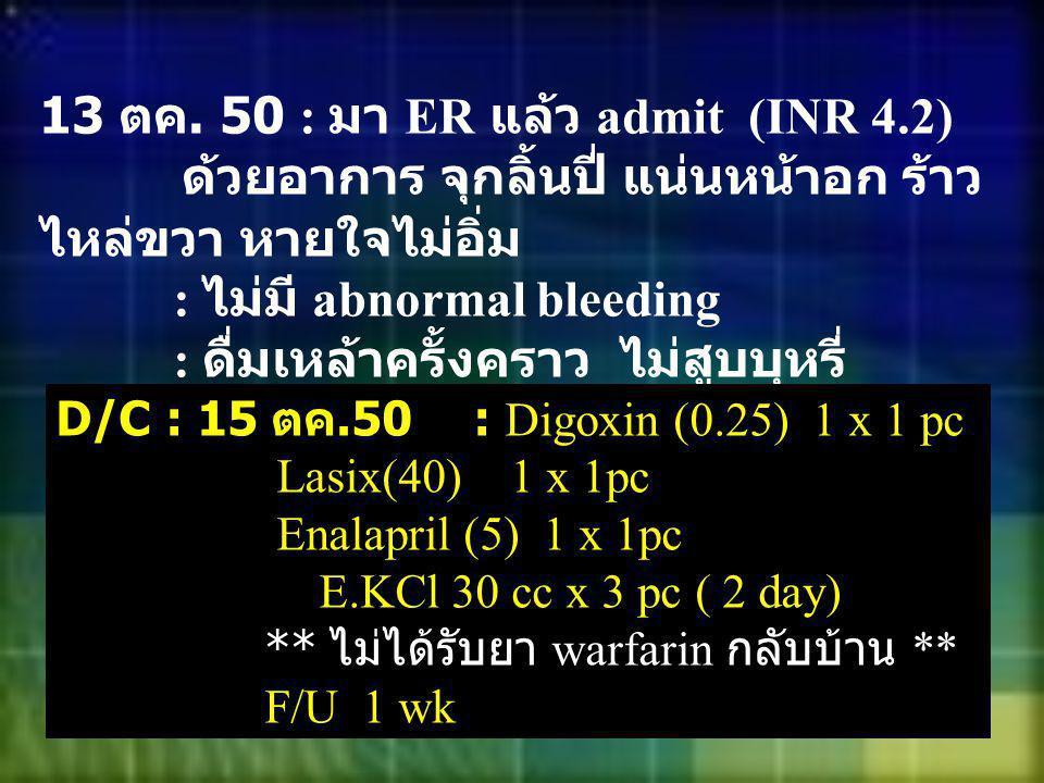 13 ตค. 50 : มา ER แล้ว admit (INR 4.2) ด้วยอาการ จุกลิ้นปี่ แน่นหน้าอก ร้าว ไหล่ขวา หายใจไม่อิ่ม : ไม่มี abnormal bleeding : ดื่มเหล้าครั้งคราว ไม่สูบ