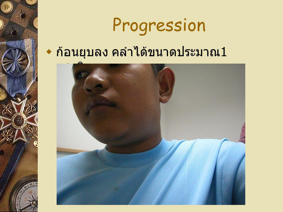 Progression  ก้อนยุบลง คลำได้ขนาดประมาณ 1 เซนติเมตร