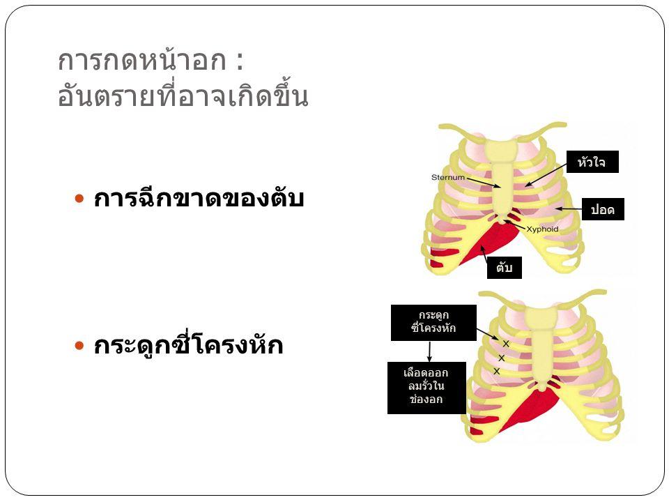 การกดหน้าอก : อันตรายที่อาจเกิดขึ้น  การฉีกขาดของตับ  กระดูกซี่โครงหัก ตับ หัวใจ ปอด กระดูก ซี่โครงหัก เลือดออก ลมรั่วใน ช่องอก