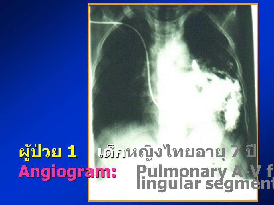 ผู้ป่วย 1 เด็ก ผู้ป่วย 1 เด็กหญิงไทยอายุ 7 ปี Angiogram: Angiogram: Pulmonary A-V fistular at lingular segment of LUL