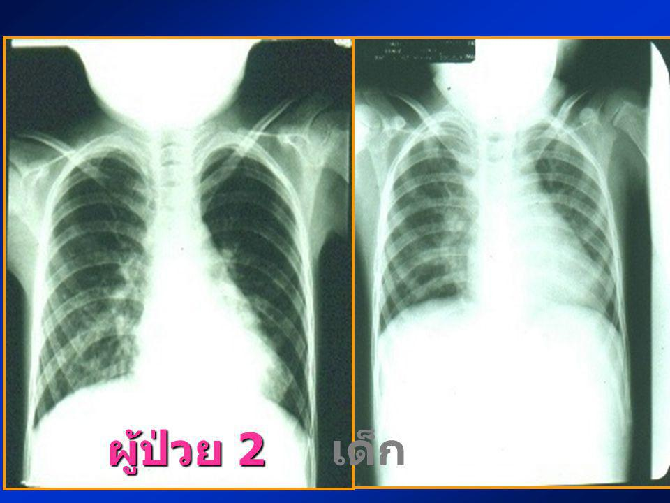 Chest X-ray : generalized interstitial infiltration with mild cardiomegaly ผู้ป่วย 2 เด็กหญิงไทยอายุ 4 ปี