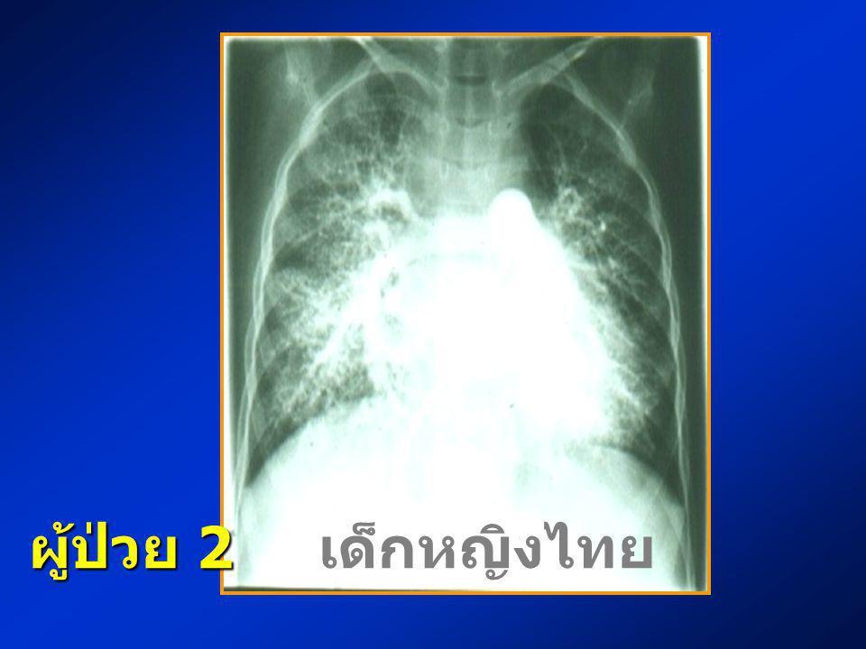ผู้ป่วย 2 ผู้ป่วย 2 เด็กหญิงไทย อายุ 4 ปี