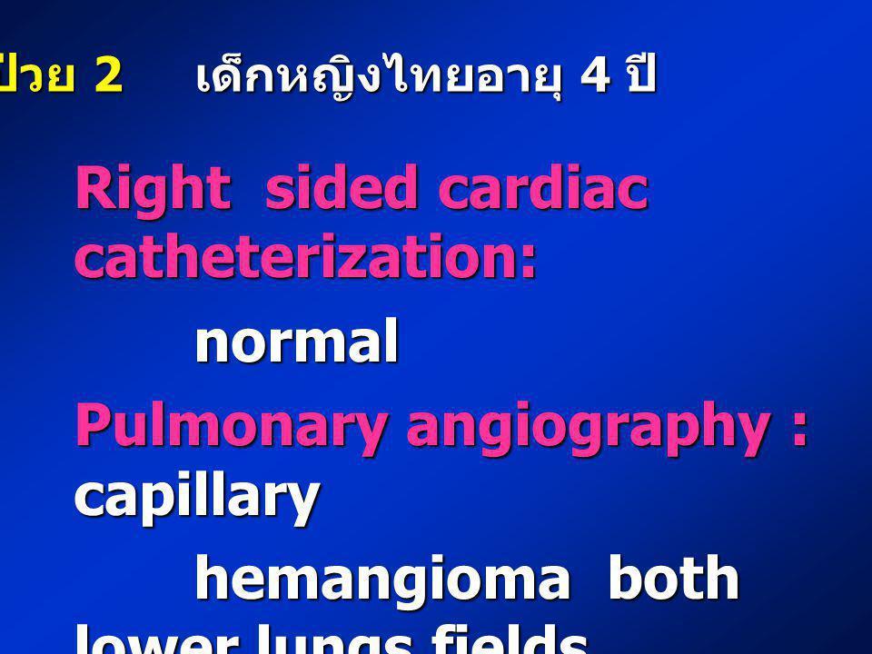 Right sided cardiac catheterization: normal normal Pulmonary angiography : capillary hemangioma both lower lungs fields hemangioma both lower lungs fi
