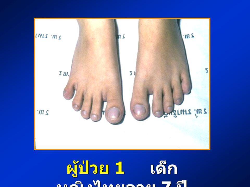 ผู้ป่วย 1 ผู้ป่วย 1 เด็กหญิงไทย อายุ 7 ปี