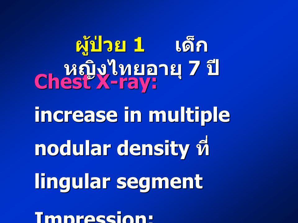 Chest X-ray: increase in multiple nodular density ที่ lingular segment Impression: bronchiectasis ผู้ป่วย 1 เด็ก หญิงไทยอายุ 7 ปี