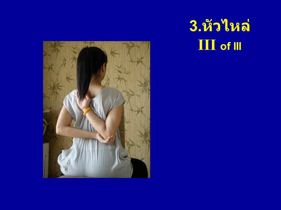 3. หัวไหล่ III of III