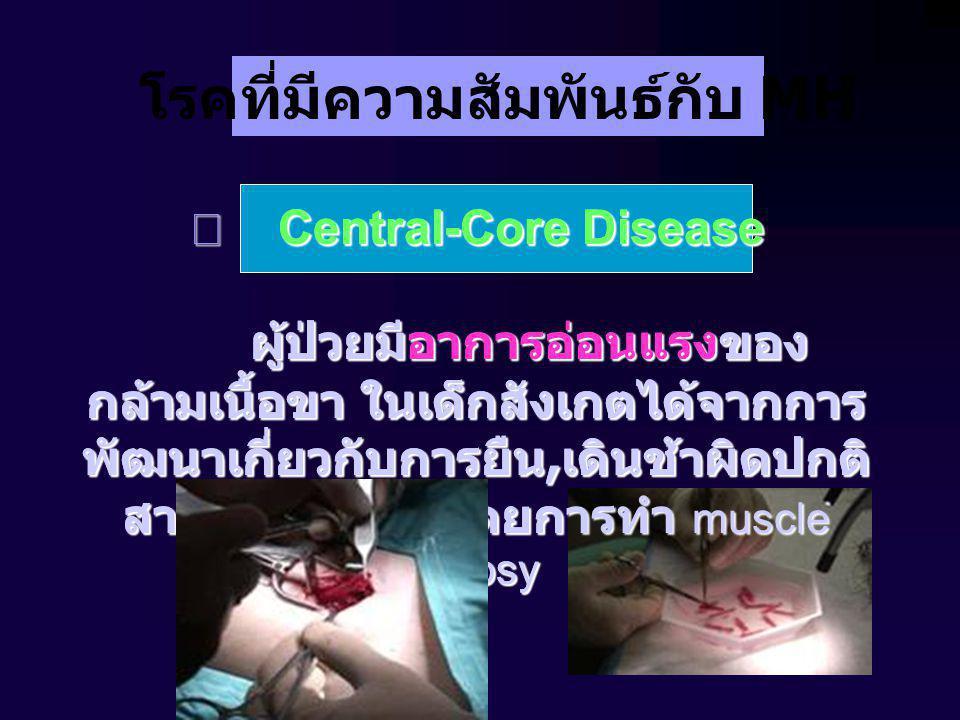 โรคที่มีความสัมพันธ์กับ MH  Central-Core Disease ผู้ป่วยมีอาการอ่อนแรงของ กล้ามเนื้อขา ในเด็กสังเกตได้จากการ พัฒนาเกี่ยวกับการยืน, เดินช้าผิดปกติ สามารถวินิจฉัยโดยการทำ muscle biopsy ผู้ป่วยมีอาการอ่อนแรงของ กล้ามเนื้อขา ในเด็กสังเกตได้จากการ พัฒนาเกี่ยวกับการยืน, เดินช้าผิดปกติ สามารถวินิจฉัยโดยการทำ muscle biopsy  Central-Core Disease ผู้ป่วยมีอาการอ่อนแรงของ กล้ามเนื้อขา ในเด็กสังเกตได้จากการ พัฒนาเกี่ยวกับการยืน, เดินช้าผิดปกติ สามารถวินิจฉัยโดยการทำ muscle biopsy ผู้ป่วยมีอาการอ่อนแรงของ กล้ามเนื้อขา ในเด็กสังเกตได้จากการ พัฒนาเกี่ยวกับการยืน, เดินช้าผิดปกติ สามารถวินิจฉัยโดยการทำ muscle biopsy