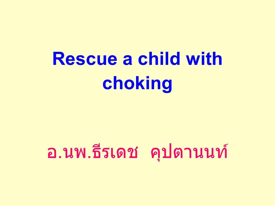 Rescue a child with choking อ. นพ. ธีรเดช คุปตานนท์