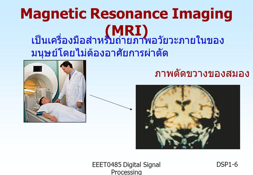 EEET0485 Digital Signal Processing DSP1-6 Magnetic Resonance Imaging (MRI) เป็นเครื่องมือสำหรับถ่ายภาพอวัยวะภายในของ มนุษย์โดยไม่ต้องอาศัยการผ่าตัด ภา
