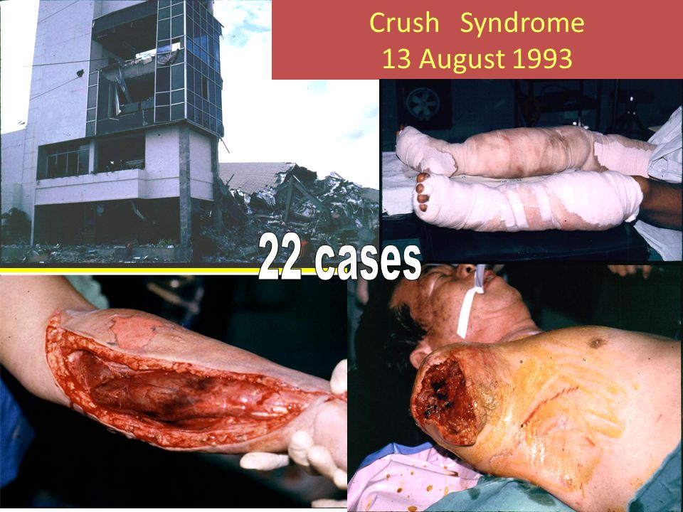Crush Syndrome 13 August 1993