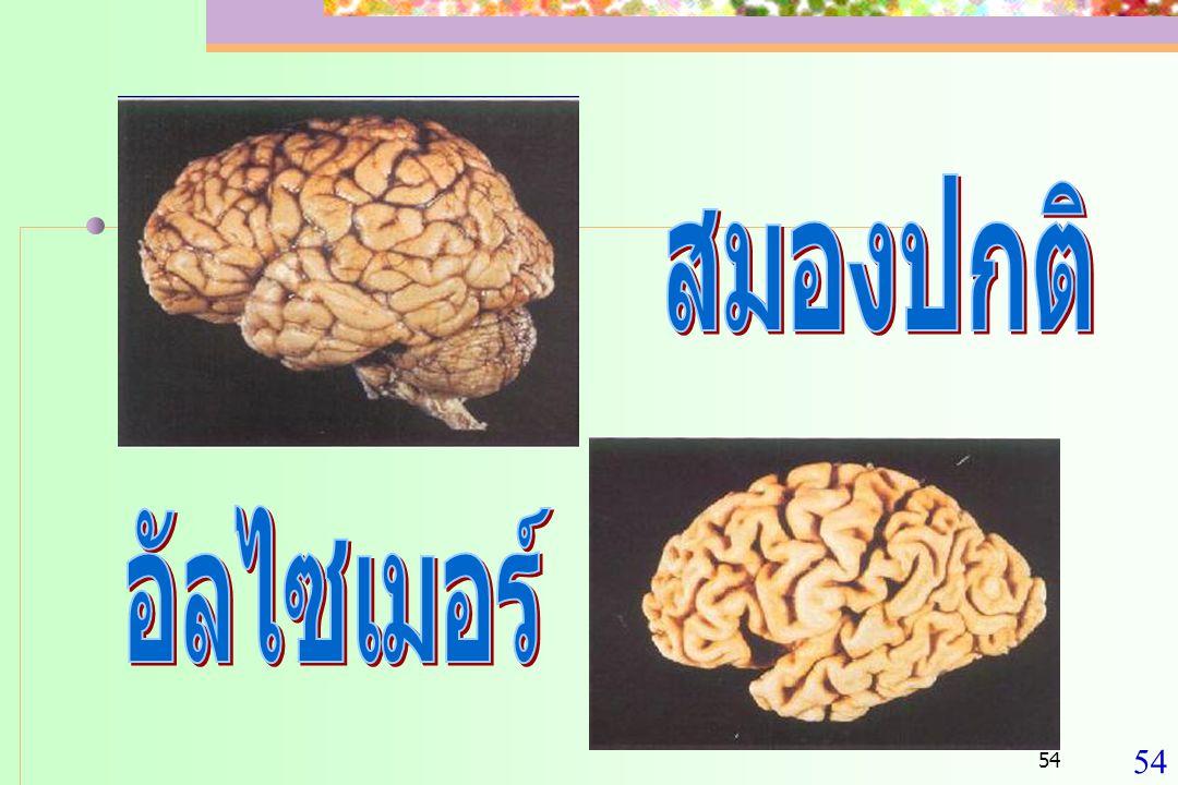 55 สาเหตุของสมองเสื่อม  จากหลอดเลือด สมอง  สมองขาดเลือด  เนื้อสมองตาย