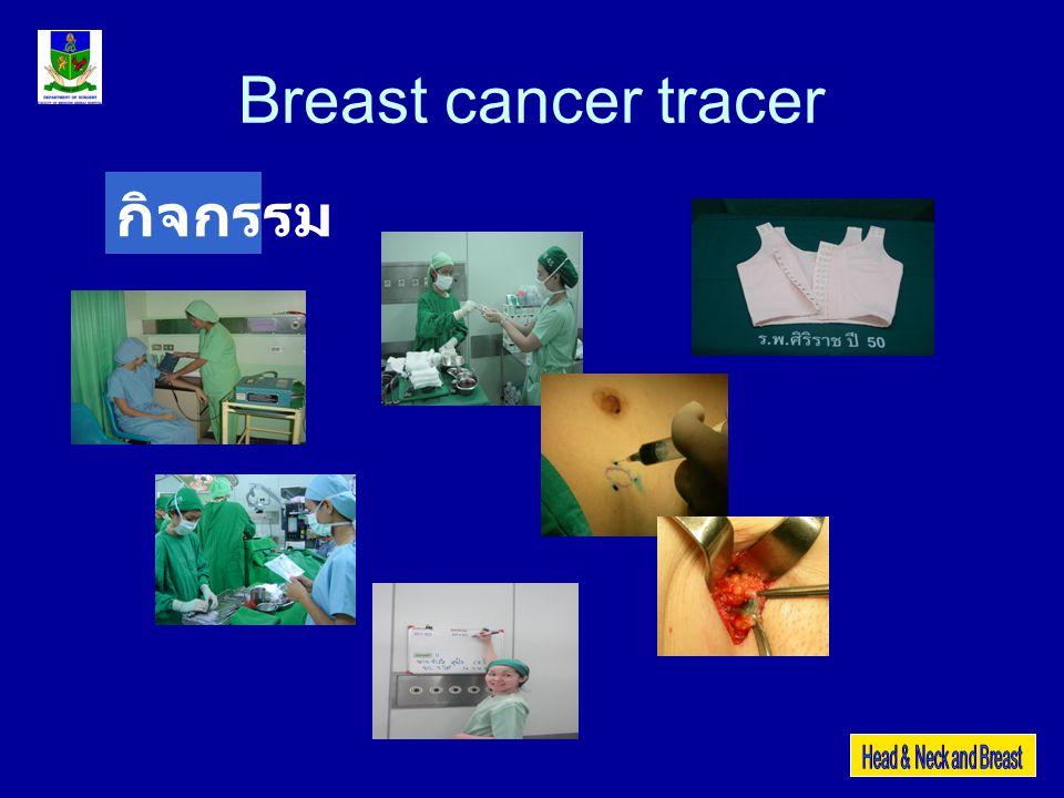 Breast cancer tracer Psycho-social-patient anxiety RiskPsycho-social-patient anxiety Activities โครงการลดความวิตกกังวลและ ส่งเสริมภาพลักษณ์ Instructions Action response unit KPIimprovement pre-op advise >60% of cases Evaluation unit Ward