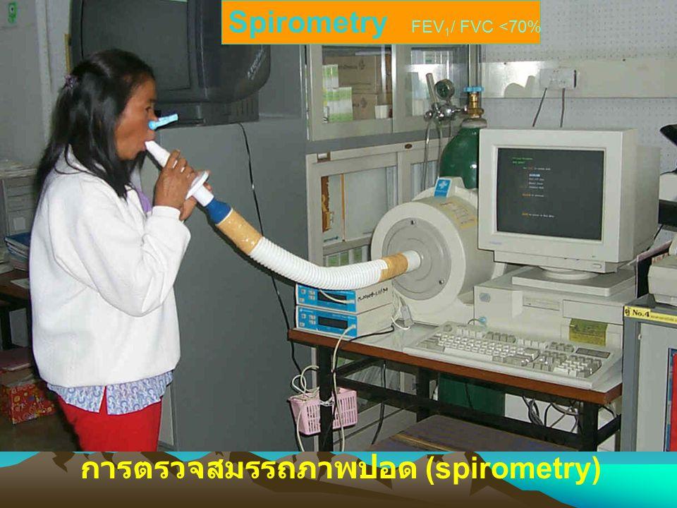 การตรวจสมรรถภาพปอด (spirometry) Spirometry FEV 1 / FVC <70%