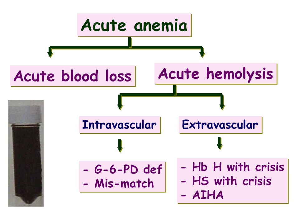 Acute anemia Acute blood loss Acute hemolysis - G-6-PD def - Mis-match - G-6-PD def - Mis-match - Hb H with crisis - HS with crisis - AIHA - Hb H with