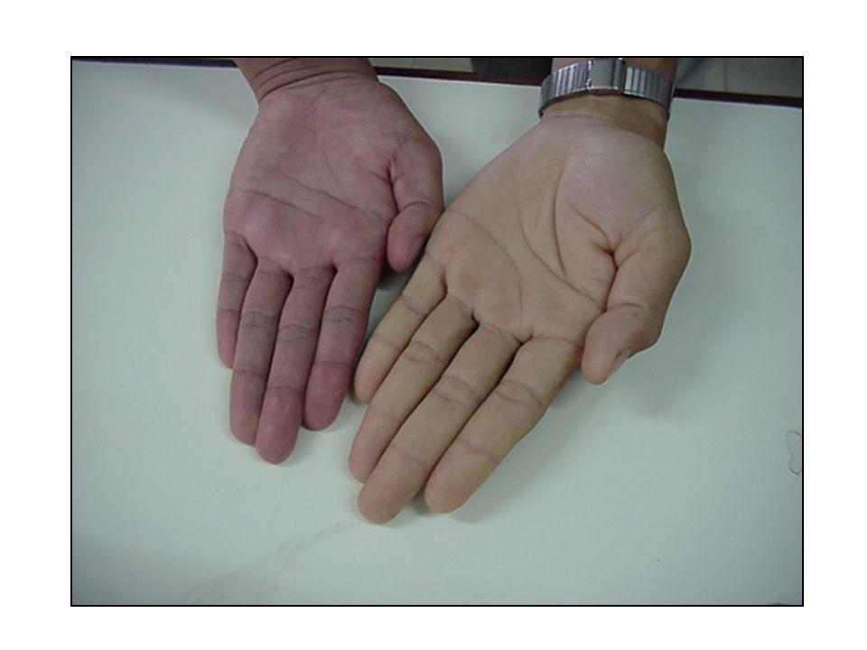 อาการแสดงทั่วไป •Systolic hypertension •tachycardia •bounding pulse •Systolic ejection murmur