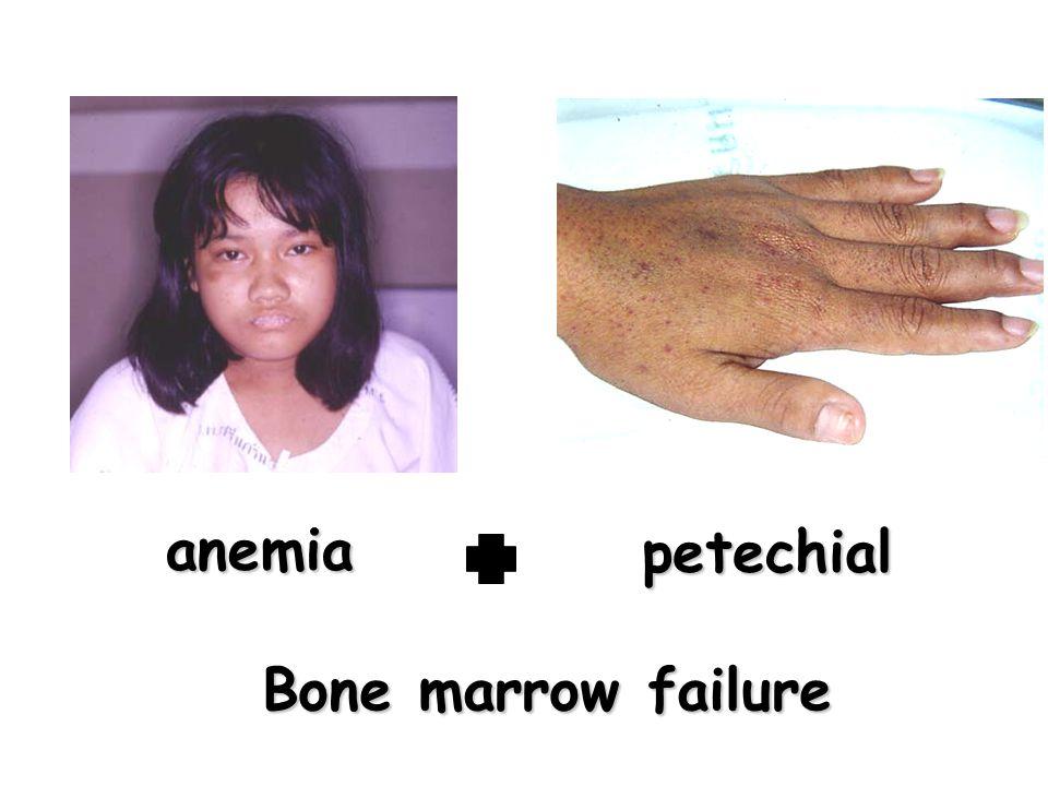 petechial Bone marrow failure anemia
