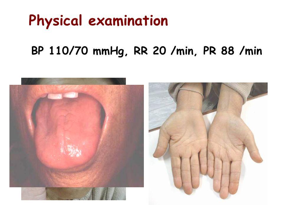 BP 110/70 mmHg, RR 20 /min, PR 88 /min Physical examination