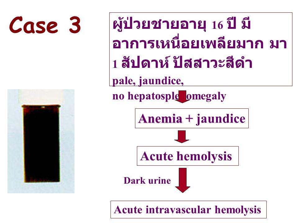 ผู้ป่วยชายอายุ 16 ปี มี อาการเหนื่อยเพลียมาก มา 1 สัปดาห์ ปัสสาวะสีดำ pale, jaundice, no hepatosplenomegaly Anemia + Anemia + jaundice Acute hemolysis