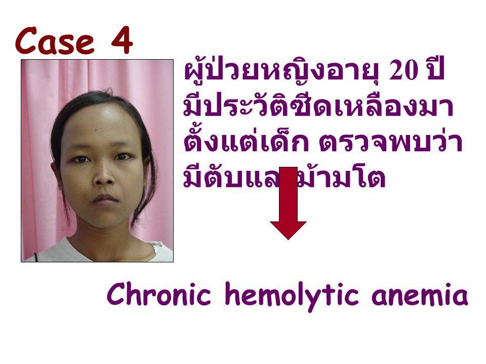 ผู้ป่วยหญิงอายุ 20 ปี มีประวัติซีดเหลืองมา ตั้งแต่เด็ก ตรวจพบว่า มีตับและม้ามโต Chronic hemolytic anemia Case 4