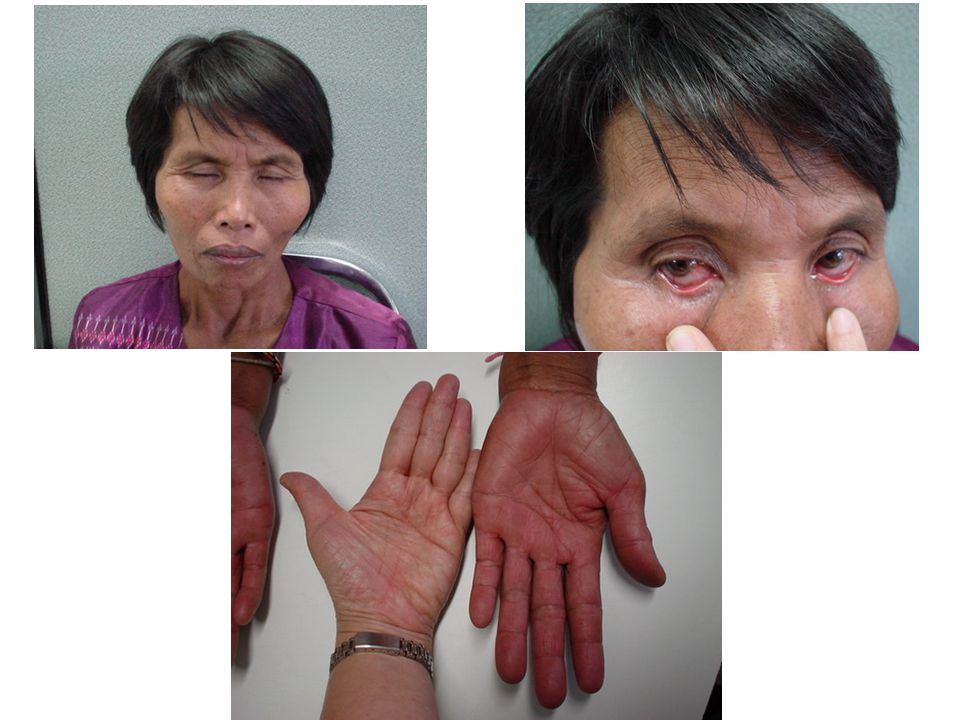 Clubbing fingers and cyanosis Secondary polycythemia