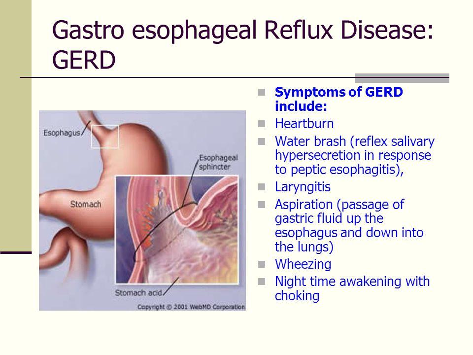 Gastro esophageal Reflux Disease: GERD  Symptoms of GERD include:  Heartburn  Water brash (reflex salivary hypersecretion in response to peptic eso