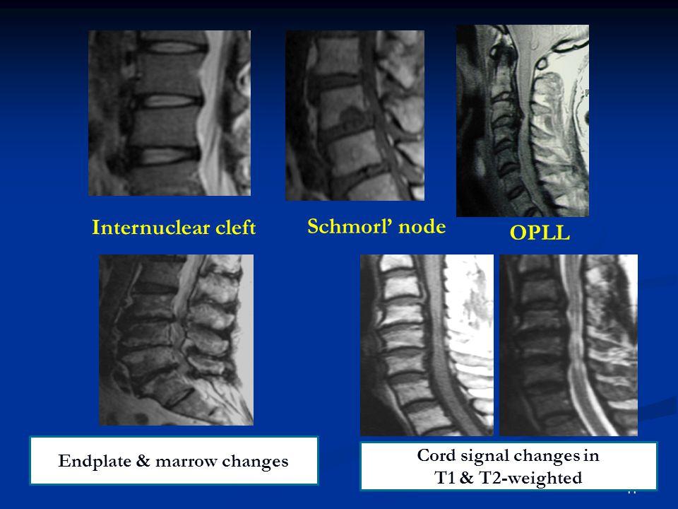 อาการทางคลินิก 12 Pain Neuro deficit Defor mity Insta bility • Radiculopathy • Myelopathy • Spondylolisthesis • Scoliosis • Kyphosis Abnormal load Abnormal motion of spinal segment • Axial pain • Radicular pain • Referred pain
