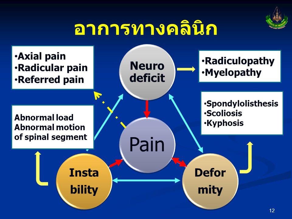 อาการทางคลินิก 12 Pain Neuro deficit Defor mity Insta bility • Radiculopathy • Myelopathy • Spondylolisthesis • Scoliosis • Kyphosis Abnormal load Abn