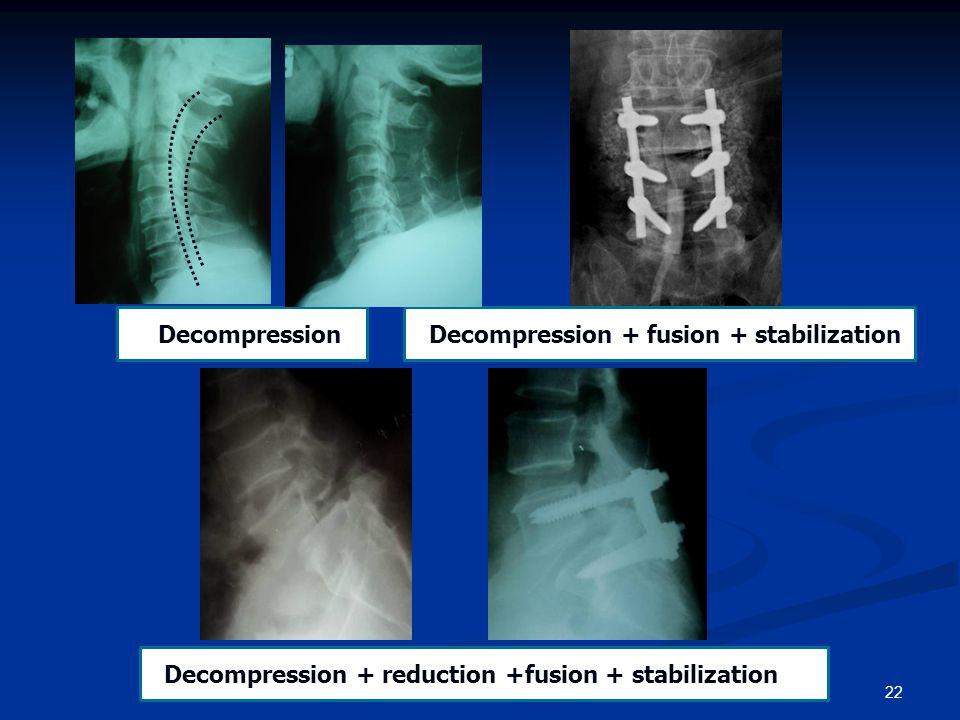 22 SDecompressionSDecompression + fusion + stabilization SDecompression + reduction +fusion + stabilization